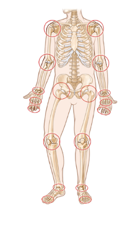 Major Joints of Pain